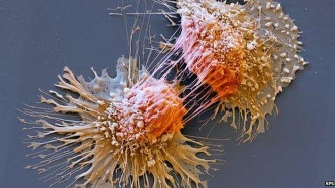 , Síndrome de Lynch, la rara condición genética que puede ser la causa del cáncer hereditario