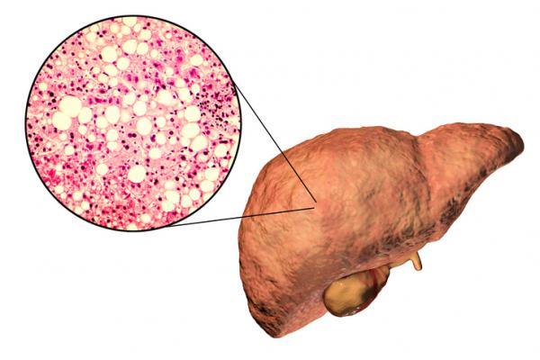 , Remedio para mejorar el hígado graso