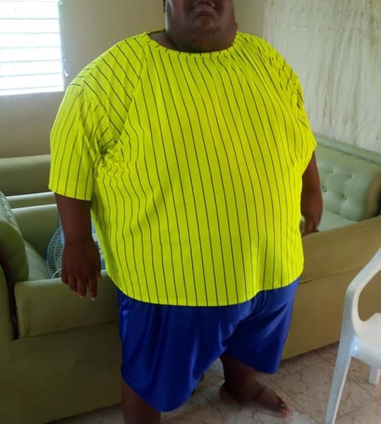 La Verdolaga, La Verdolaga con 700 libras, pide ayuda para realizarse una cirugía de Manga Gástrica.