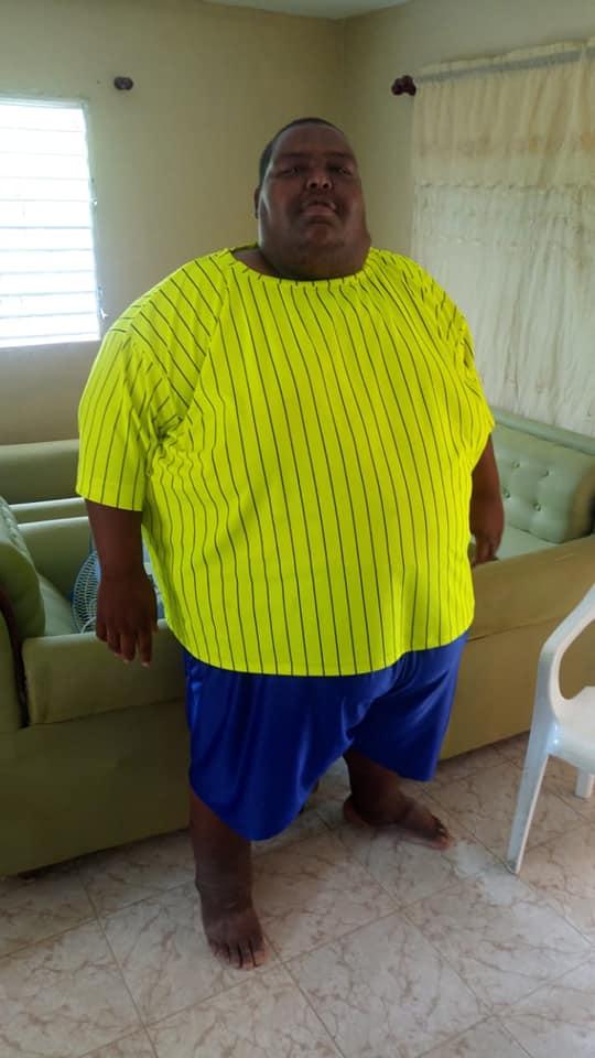 , La Verdolaga con 700 libras, pide ayuda para realizarse una cirugía de Manga Gástrica.